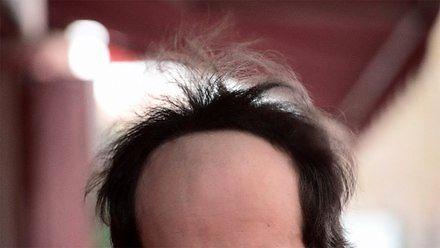 Nie oszukuj się, że jeszcze nie jesteś łysy