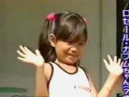 Dziewczynka z sześcioma palcami